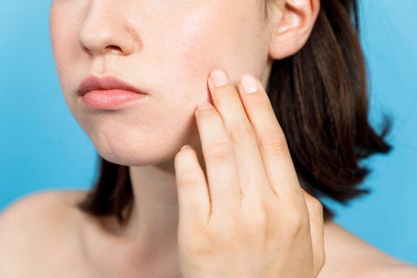 美容鍼とは? お肌のトラブルを優しく治す治療について!